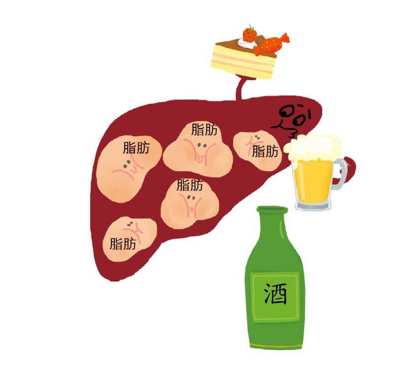 今周刊你的身體幾歲_脂肪肝